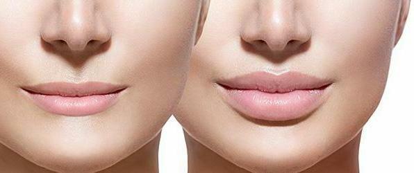 увеличение губ гиалуроновой кислотой до и после процедуры